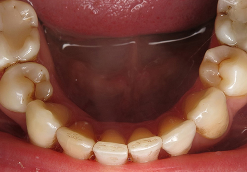 After Invisalign Full Treatment